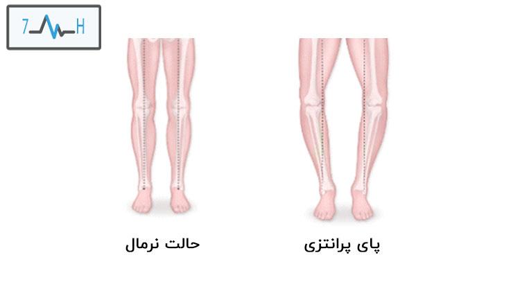 تفاوت اناتومی پای نرکال و پای پرانتزی