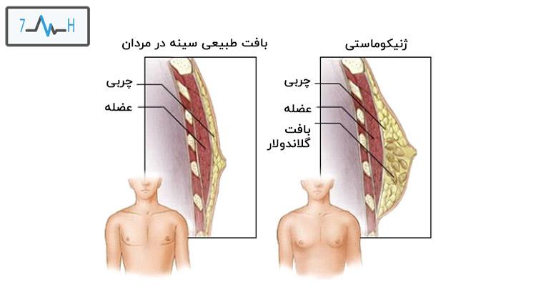 لایه های چربی و عضله در سینه معمولی اقایان و فرو مبتلا به ژنیکوماستی